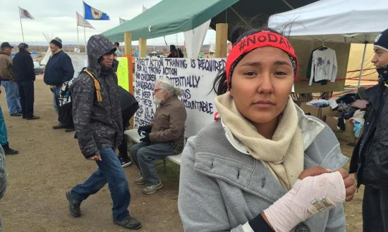 Lauren Howland, with broken wrist suffered at the pipeline protest. Photograph: Sam Levin for the Guardian